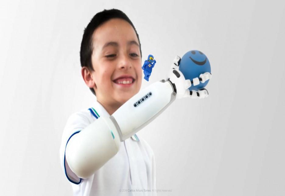 Bambino con protesi gioca con una pallina sorridente